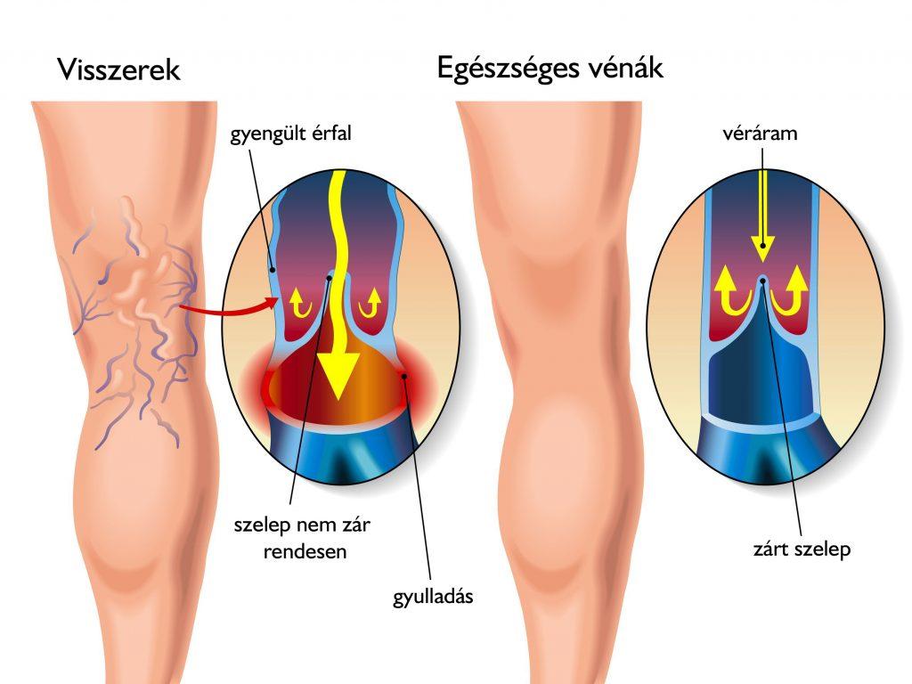 csípő visszér tünetei