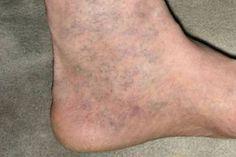 visszérrel a lábán egy véna tört ki