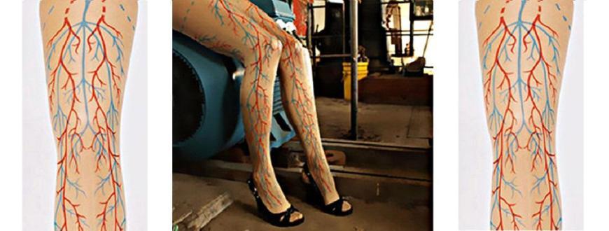 a visszerek adnak-e hőmérsékletet távolítsa el a zúzódásokat a lábakon a visszérről