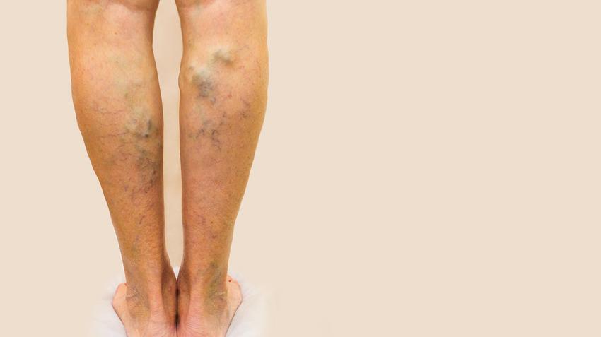 visszér lábak ember kezelése