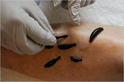 Orvosi pióca kezelés