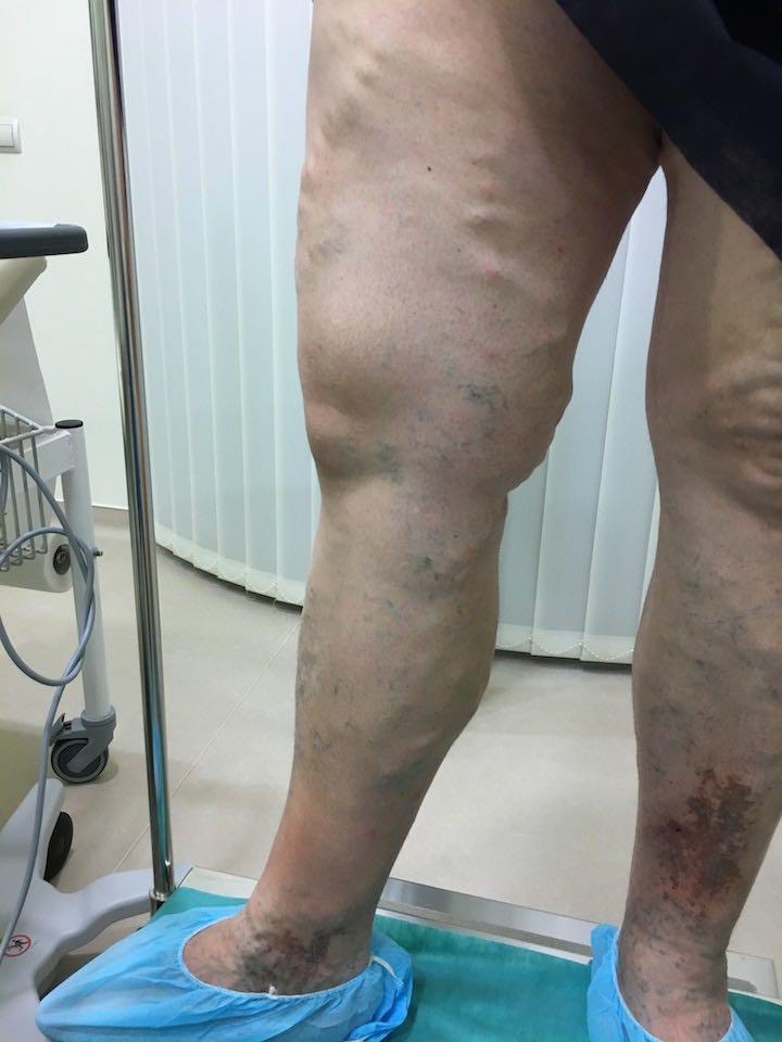 visszér a szkleroterápia előtt és után fotó)