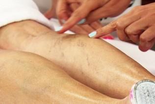 A fő oka annak, hogy a véna a lábon tört - Thrombophlebitis - September