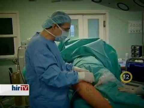 lézeres műtét visszér videó