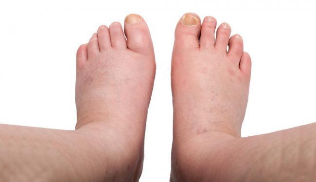 ha a lábak varikózisát nem kezelik