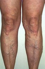 retikuláris visszér tünetei