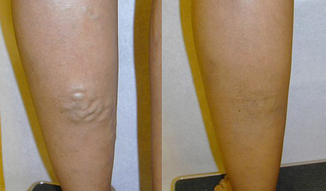 hirudoterápia visszeres lábakon