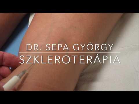 szkleroterápia visszerek kezelésére)