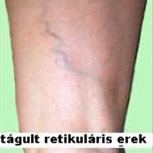 retikuláris visszér tünetei kismedencei visszérrel járás