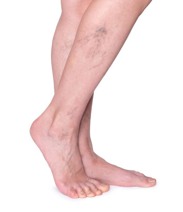 A láb visszérének helyes kezelése almaecettel - Megelőzés
