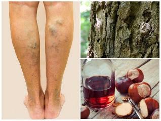 visszér a lábakon népi kezelés)