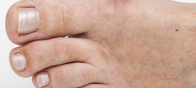 Visszérgyulladás - lelki okai