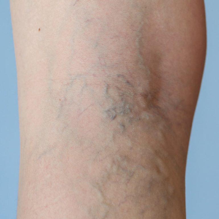 visszér, ahogy a lábak fájnak visszeres fehérnemű