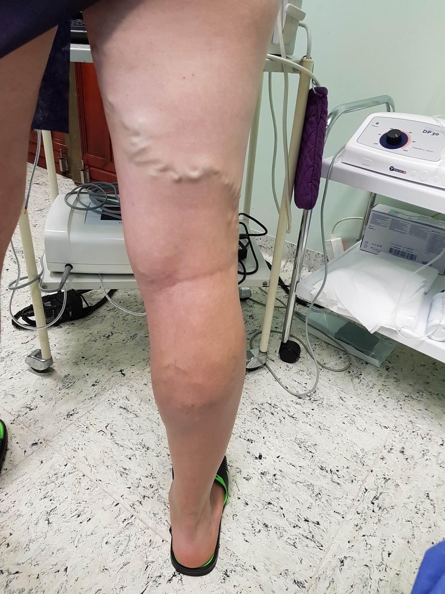 járhat a visszér műtét után)