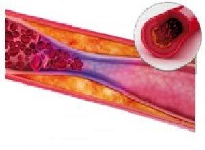 hogyan kell kezelni a tromboflebitist és a visszérgyulladást