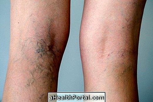 A lábakon a vénák viszketése okai és kezelése - Kezelni
