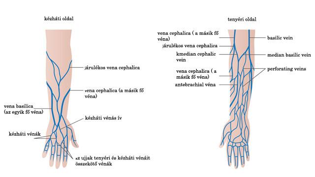 Visszér gyulladás – Felületes visszér trombózis