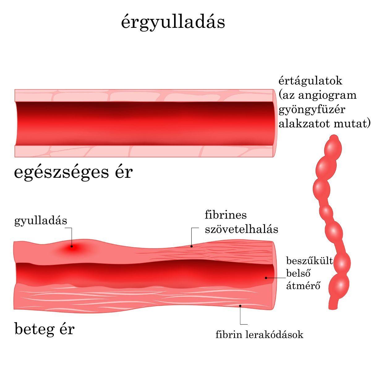 a vénák visszérrel történő megerősítésére visszér és műtét előnyei és hátrányai