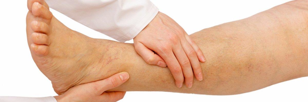 fotó a varikózisról és a vérrög a lábán visszér kezelése Berdyanskban