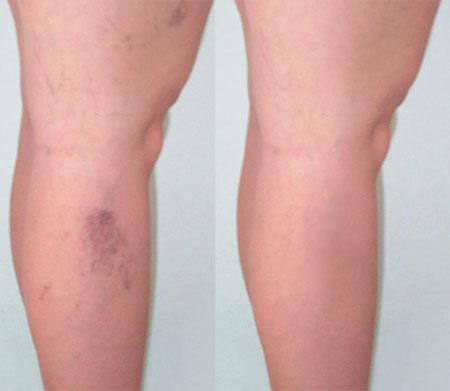 a lábakon lévő visszér lézeres kezelése
