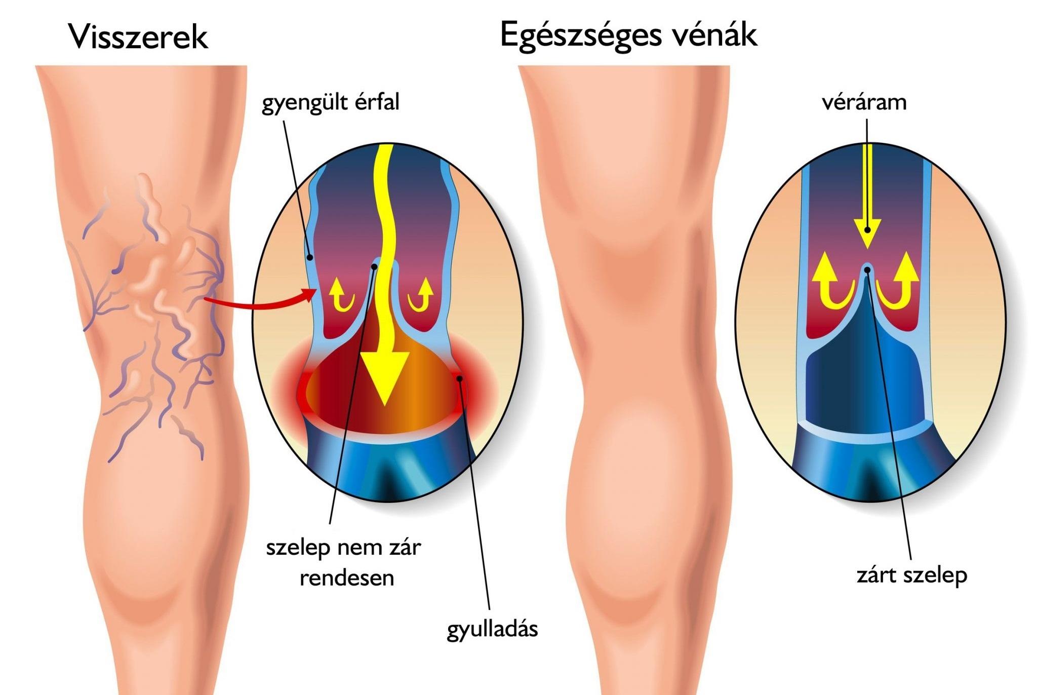 rugalmas kötszerek visszerek esetén műtét után