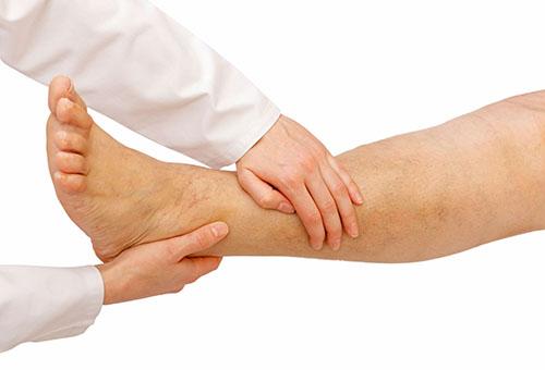 aki a lábak varikózisát kezeli)