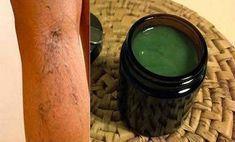 olívaolaj kezeli a visszér ősi receptek a visszérre