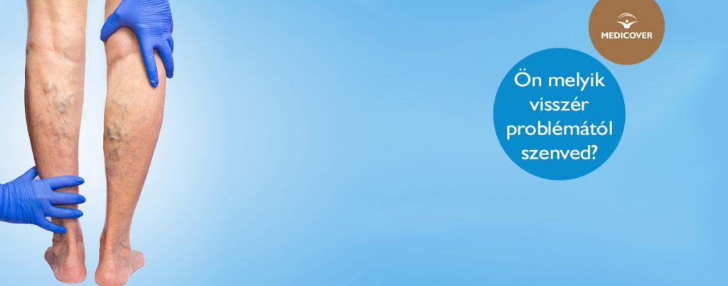 hogyan lehet eltávolítani a kék foltokat a visszérben