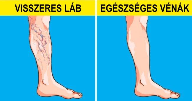 a lábak nyújtása visszérrel