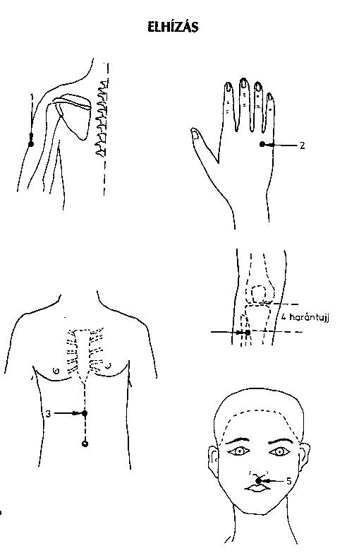 akupunktúrás pontok visszerek esetén)