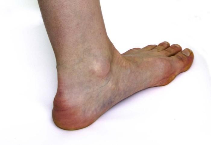 hogy néz ki a varikózis a láb belsejéből