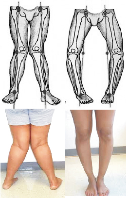 a lábak visszérgyulladásának súlyosbodása visszér, ahol fáj