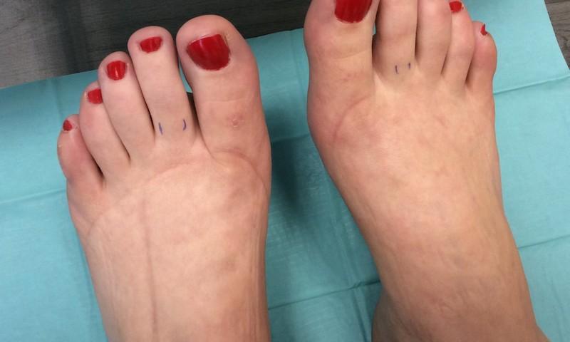 a láb ödéma visszér kezelése visszér megelőző gél
