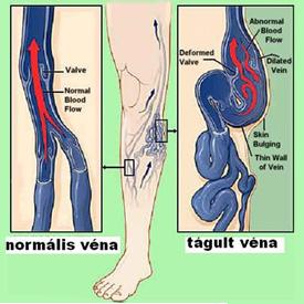 a láb visszér műtét utáni ellátása balzsamok a visszér ellen