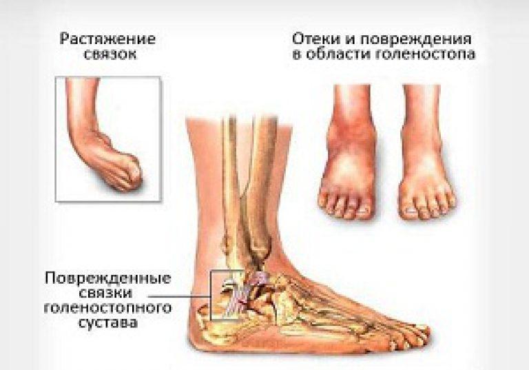visszér a lábak tüneteinek kezelése