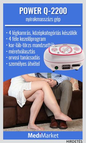 a lábak varikózisának modern kezelése)