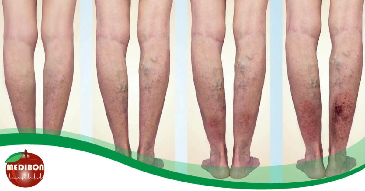 a lábak visszér kezdeti formája)