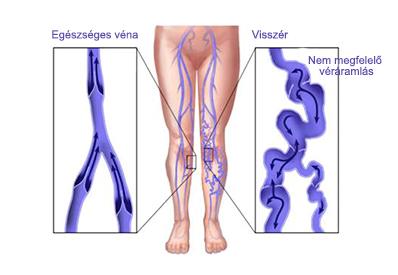 a lábak visszér kialakulásának szakaszai)