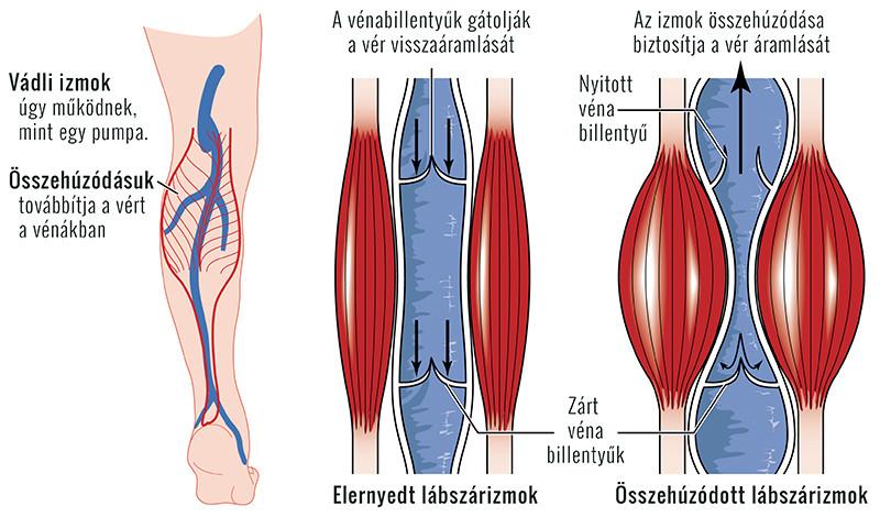 a lábakon lévő erek visszérrel repednek)