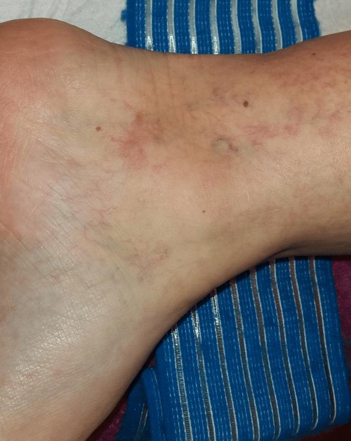a lábakon lévő visszerek kezelése lézeres áron)