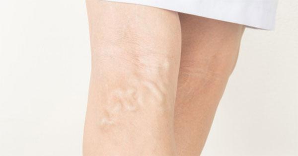 Kínai varikozus foltok a lábán, Visszeres haematoma a lábakon