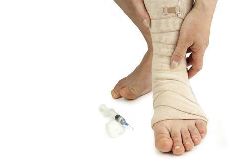 a térd visszeres sérülést okozhat