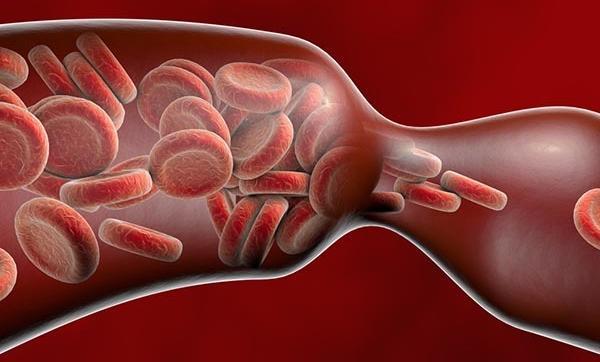 a visszér gangrénához vezethet-e bal visszér okoz