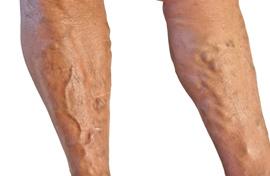 a bőr visszeres változása