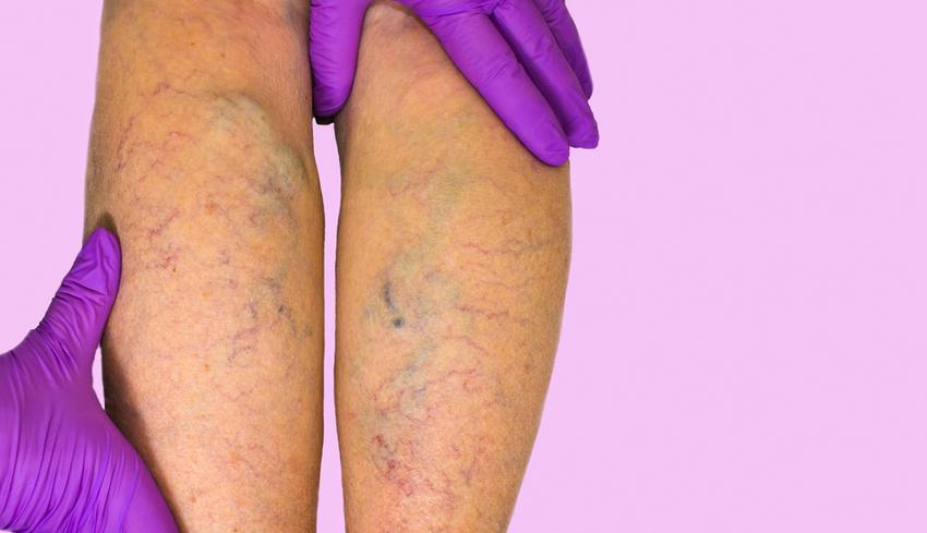 visszerek a terhesség tünetei alatt a lábakon