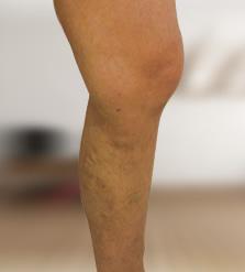 összeesküvések a visszereken a lábakon