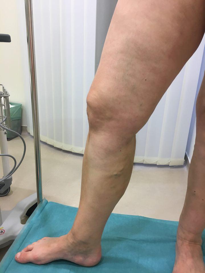 a lábak visszérgyulladása kenőcsökkel kötés a sípcsonton visszeres
