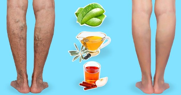 terápiás kenőcs a visszereken a lábakon