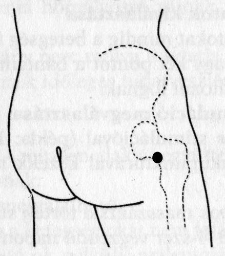akupunktúrás pontok visszerek esetén vényköteles tabletták visszér ellen