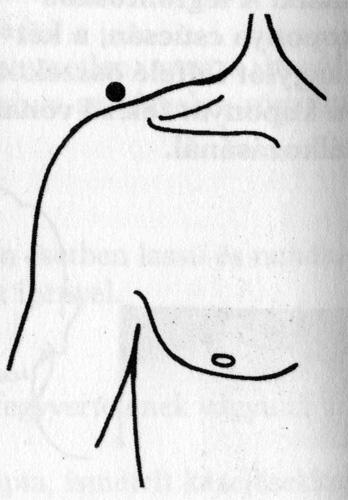 akupunktúrás pontok visszerek esetén